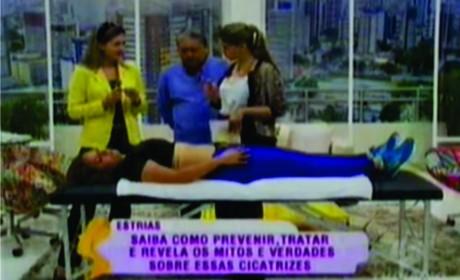Estrias - TV DIÁRIO